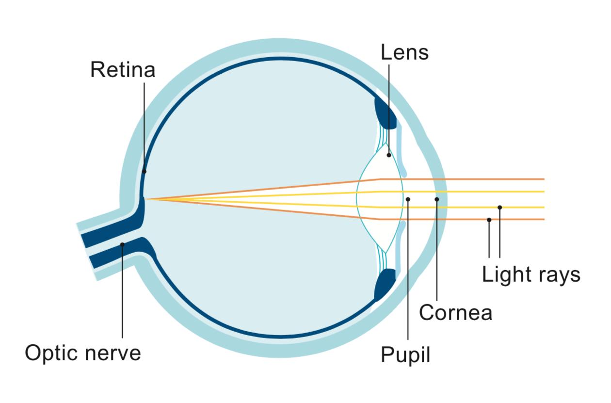 Cataract Surgery UK